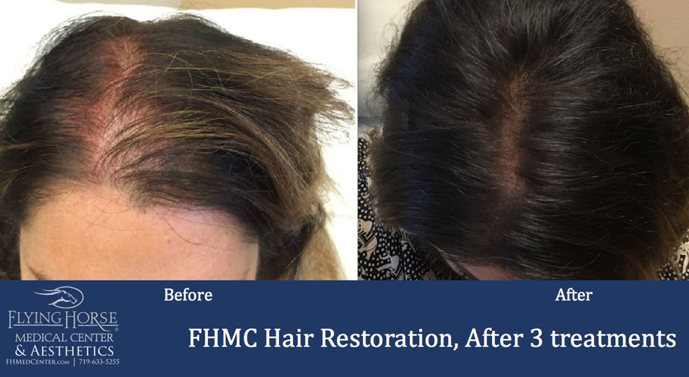 Hair Restoration Treatment Colorado Springs