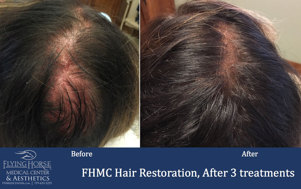 FHMC Hair Restoration Treatment Service