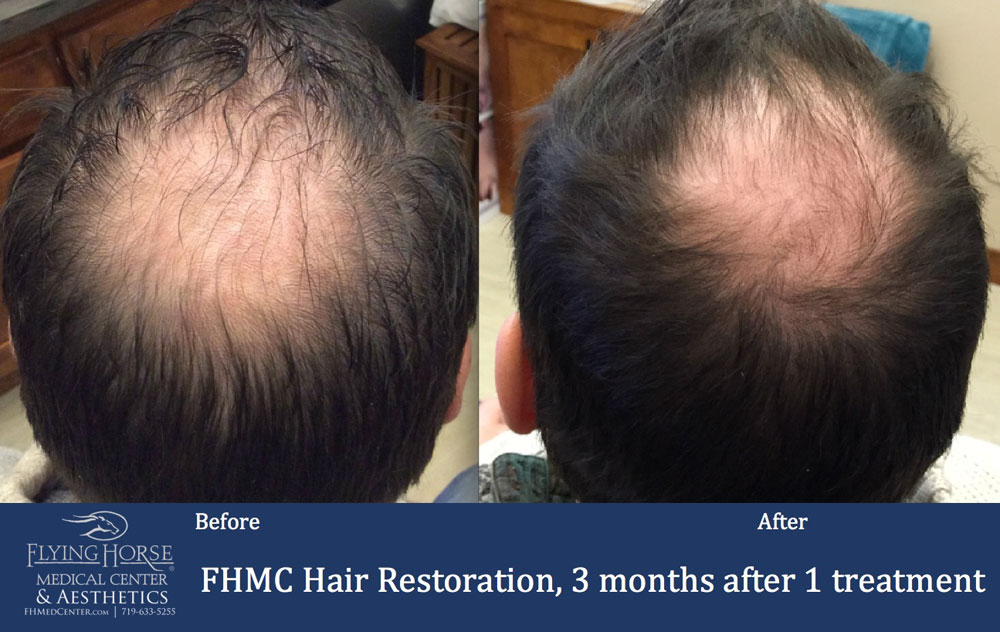 FHMC Hair Restoration Treatment Service Monument