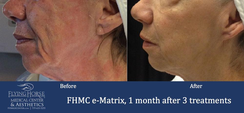 FHMC E-matrix Services