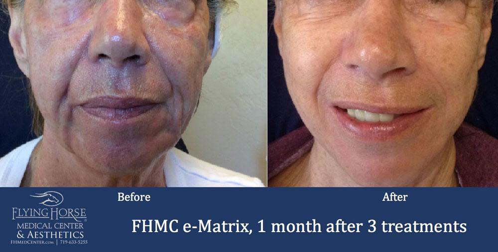 FHMC E-matrix Services 1 Months After 3 Treatment
