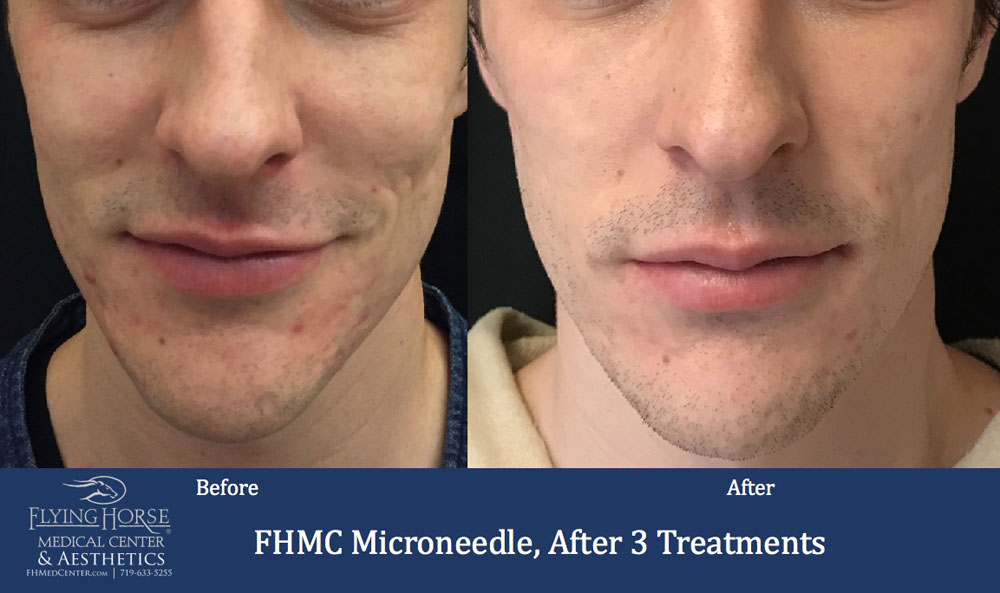 FHMC Microneedling, After 3 Treatments