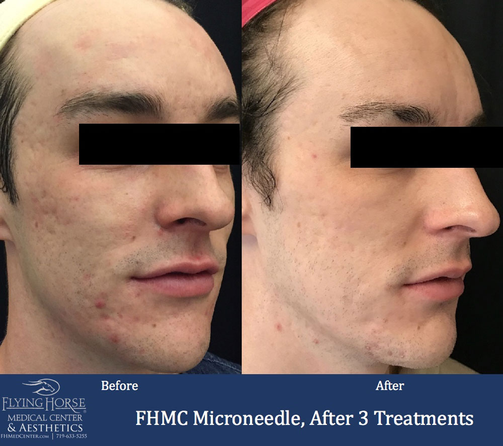 FHMC Microneedling Services, After 3 Treatment