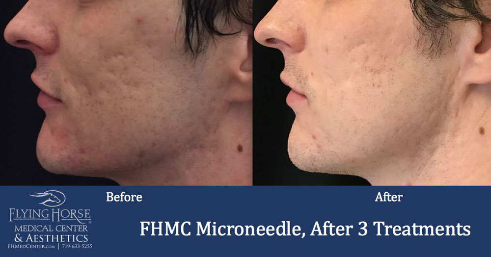 FHMC Microneedling Services, 1 Months After 3 Treatment