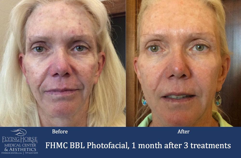 FHMC BBL Photofacials