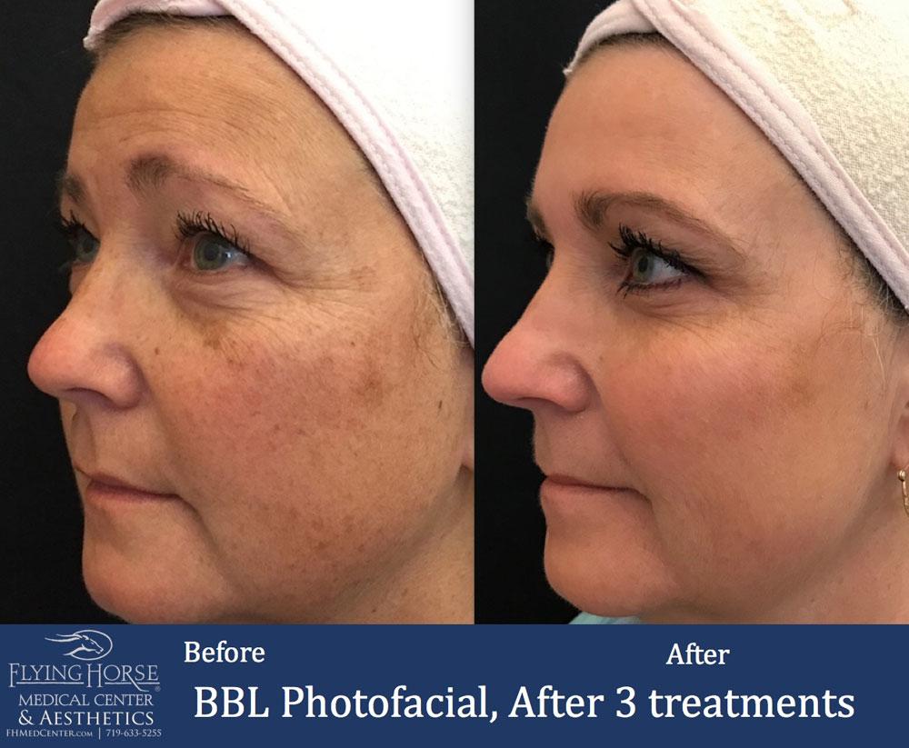 FHMC BBL Photofacial, After 3 Treatment
