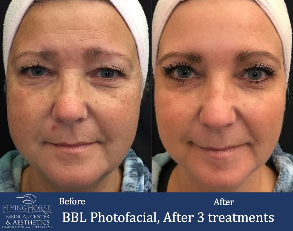 FHMC BBL Photofacial Treatment