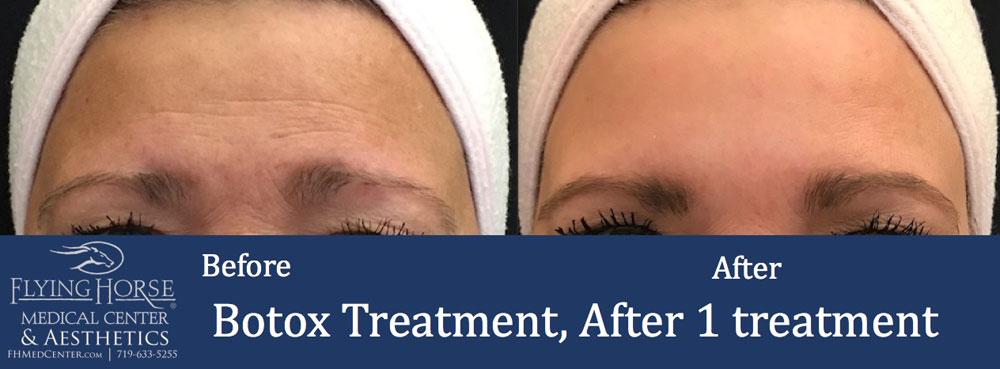 FHMC Botox, After 1 Treatment