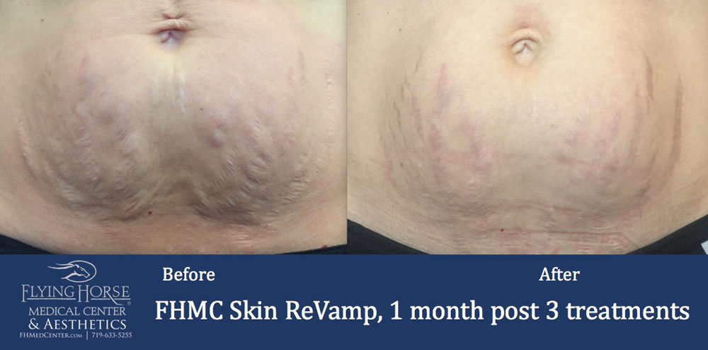 FHMC Skin ReVamp, 1 Months After 3 Treatment