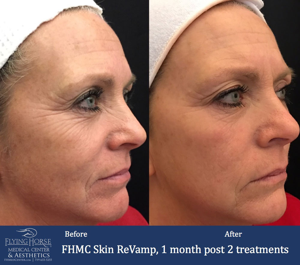 FHMC Skin ReVamp Front Services