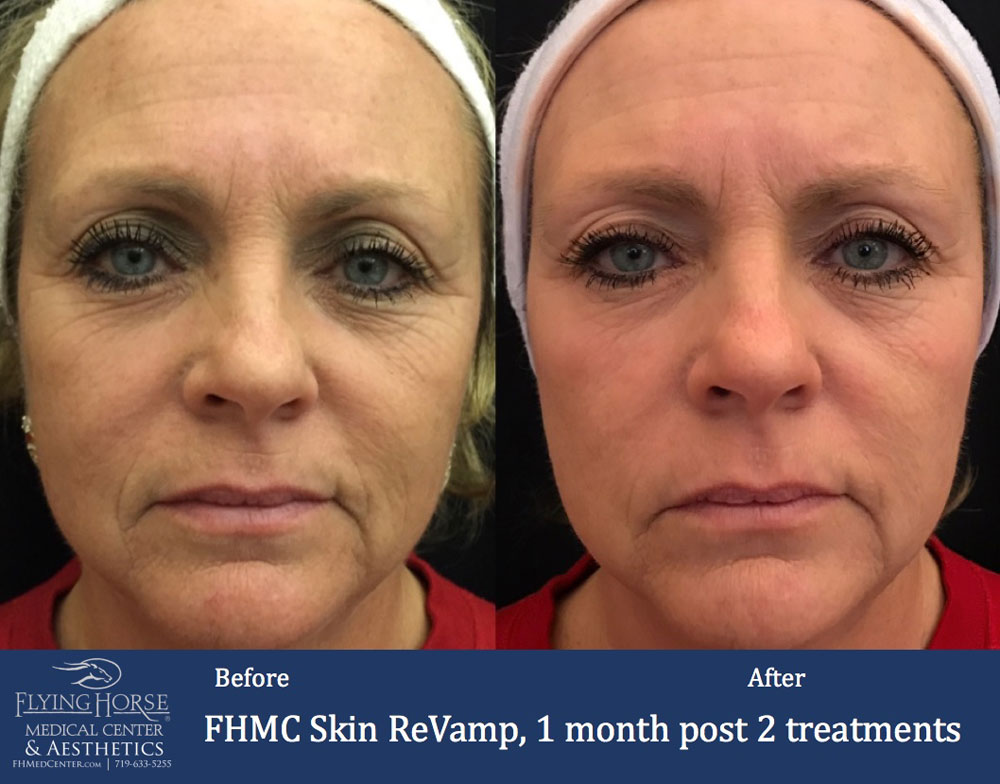 FHMC Skin ReVamp, 1 Months Post 2 Treatment