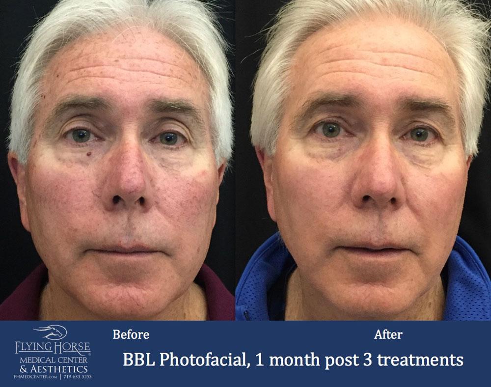 FHMC BBL Photofacial, 1 Months Past 3 Treatment