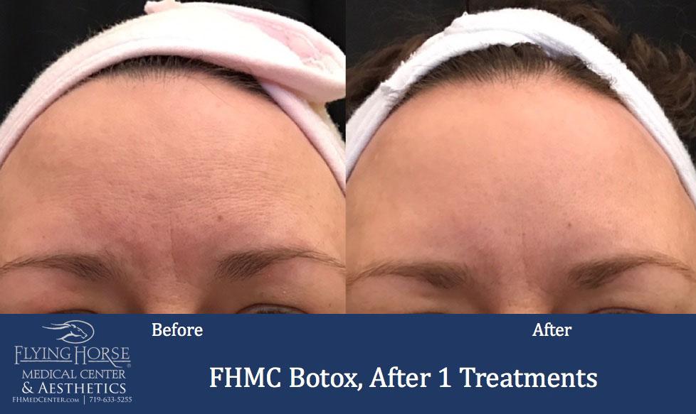 FHMC Botox Services, After 1 Treatment