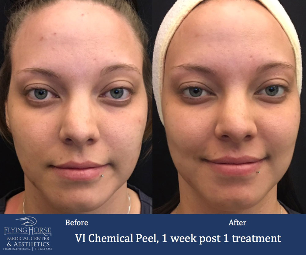 FHMC VI Chemical Peels, 1 Week Post 1 Treatment