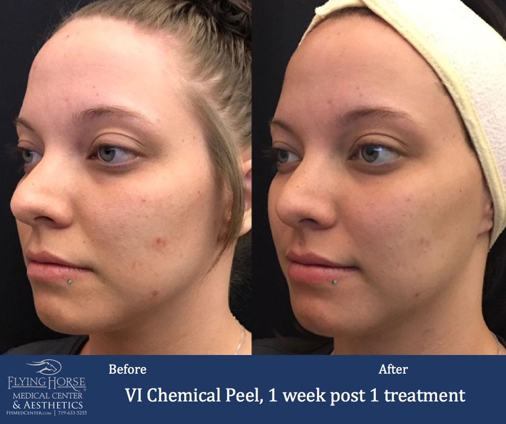 FHMC Chemical Peels, 1 Week Past 1 Treatment