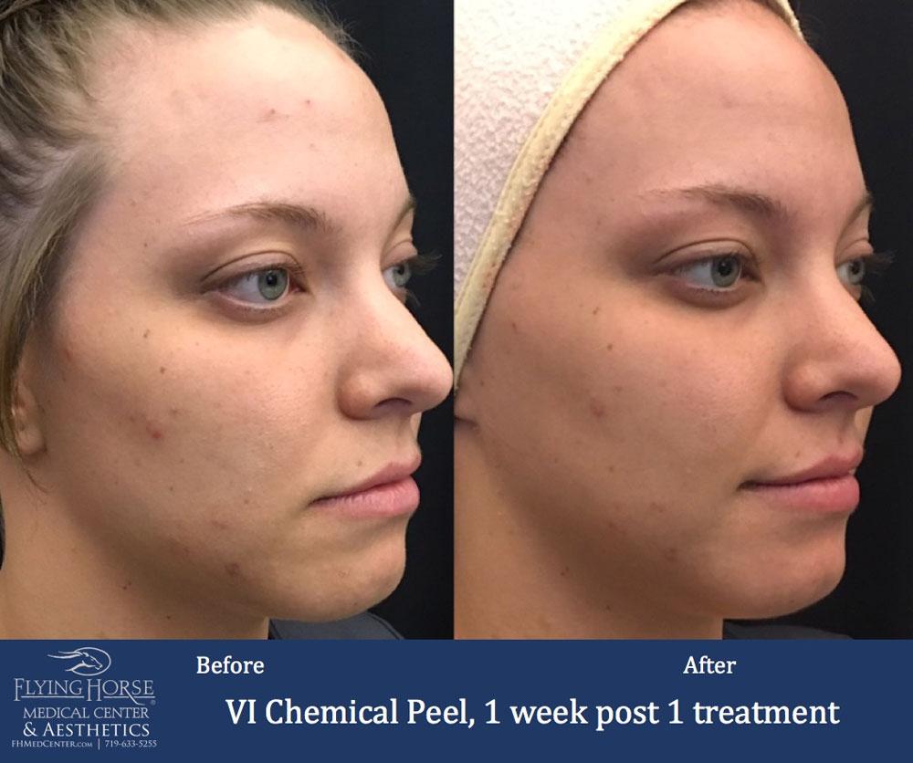 FHMC VI Chemical Peels Services, 1 Week Post 1 Treatment